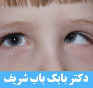 درمان انحراف چشم با عمل استرابیسم