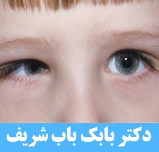 انحراف چشم از نوع سندرم دوئن